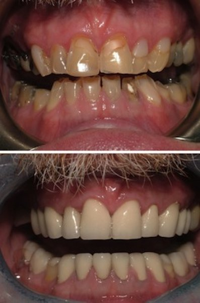 Before and after photos irwin mccabe dental group for 195 north terrace adelaide