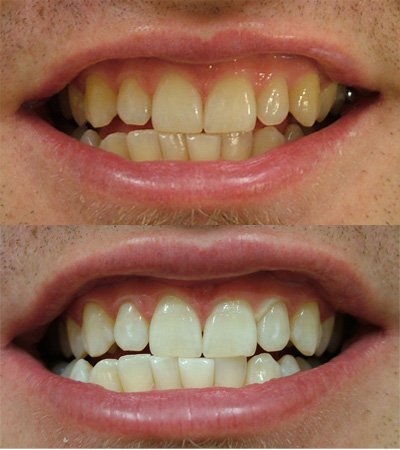 Before and after photos irwin mccabe dental group for 195 north terrace adelaide orthodontist